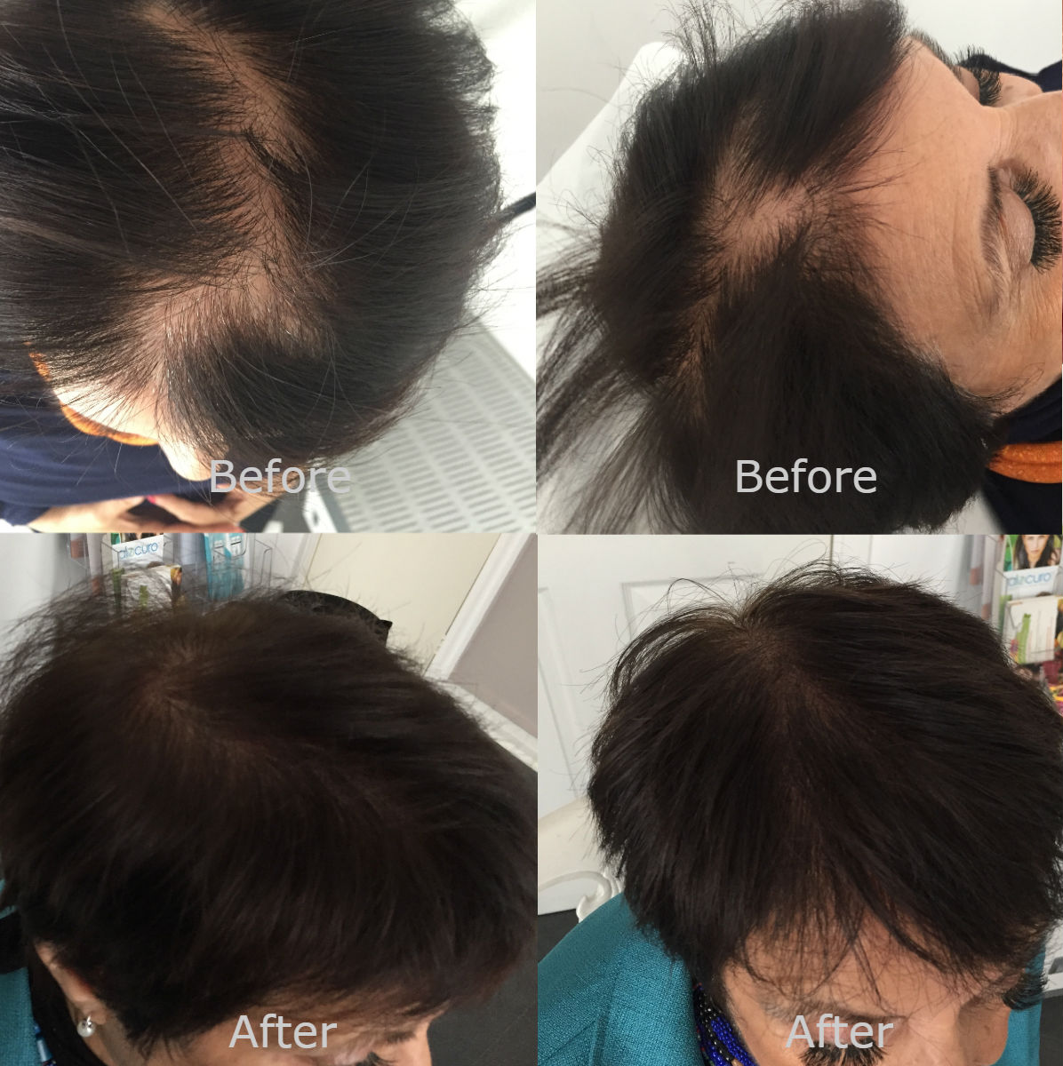 nft beauty hair before and after b