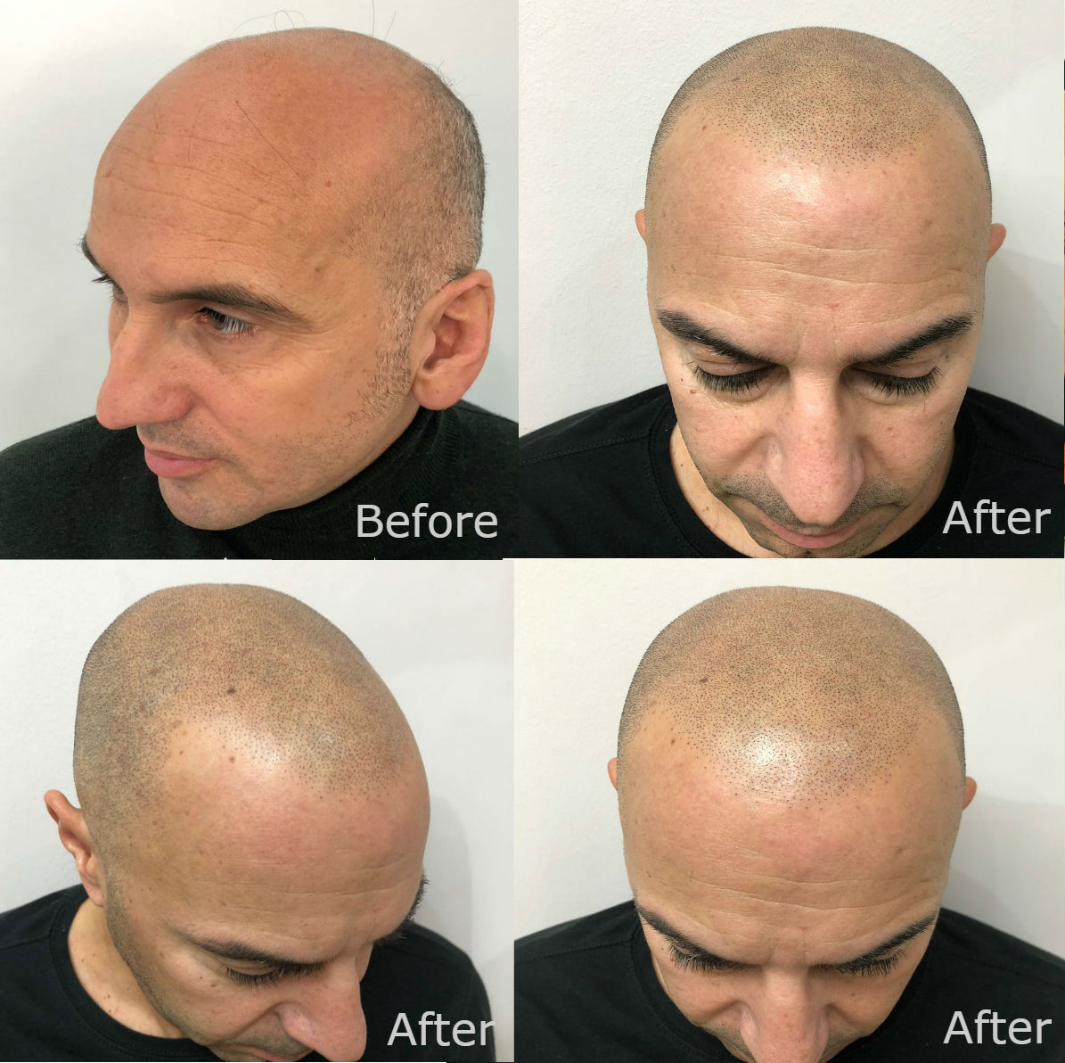 nft beauty hair before and after c