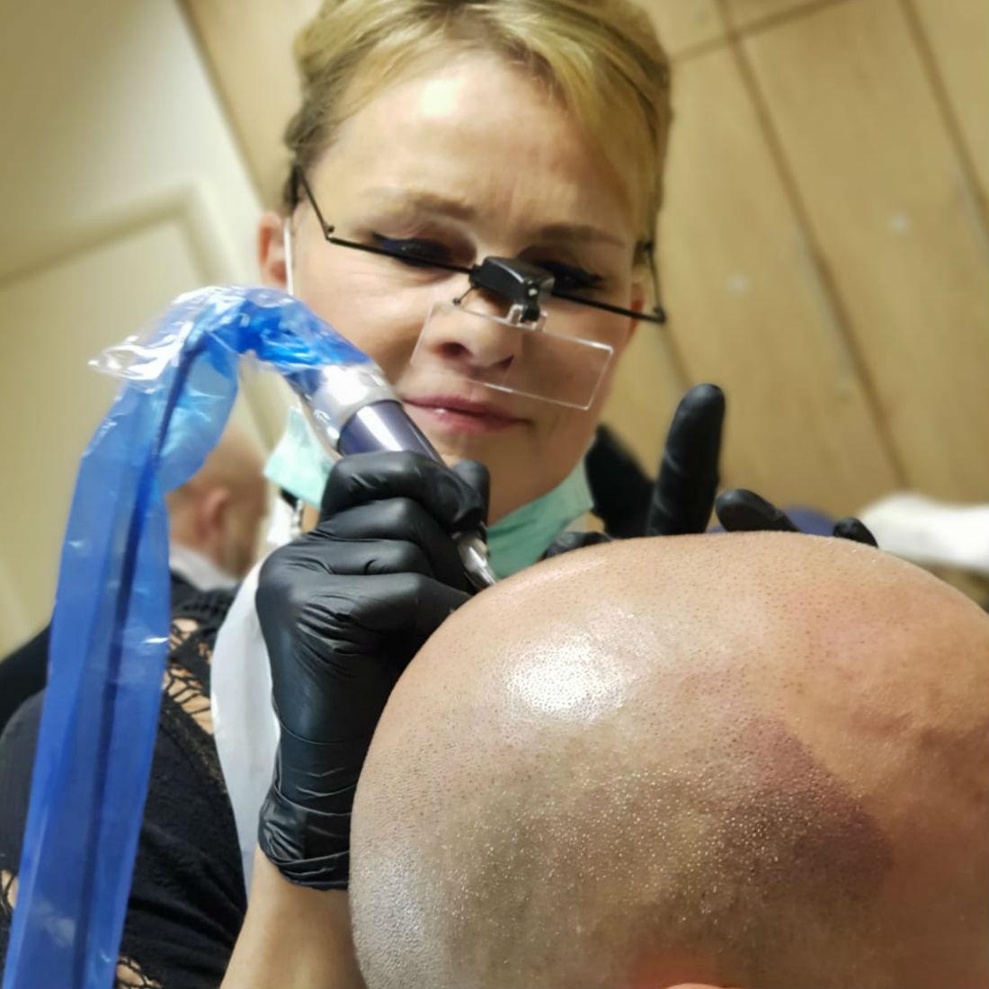 nft beauty scalp pigmentation a