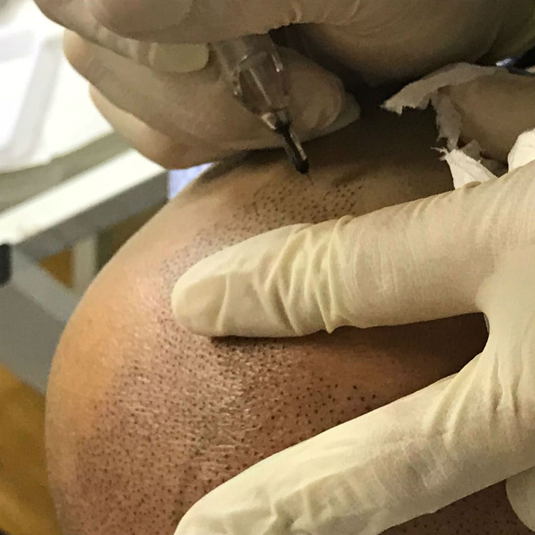 nft beauty scalp pigmentation d