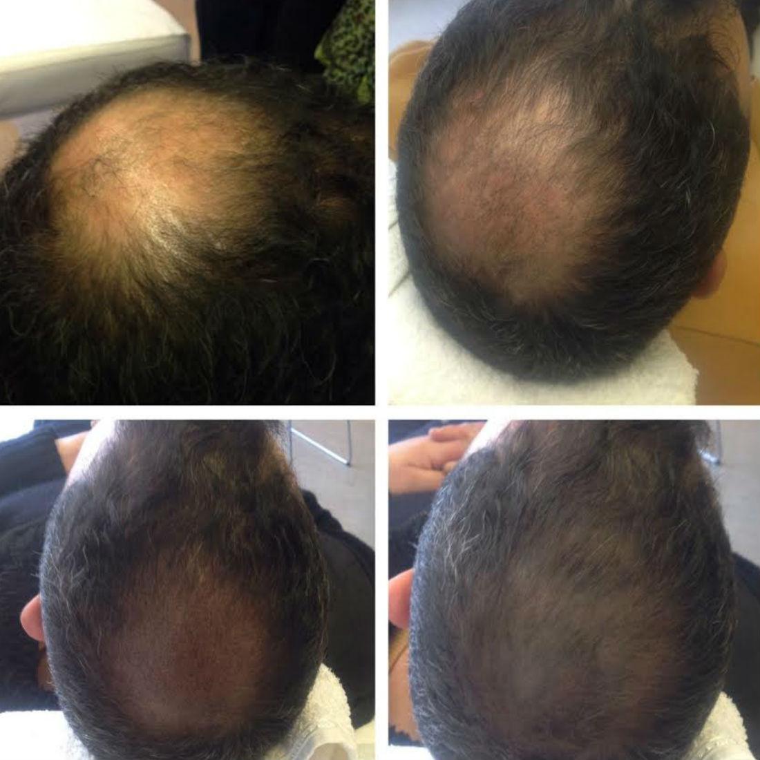 nft beauty scalp pigmentation e