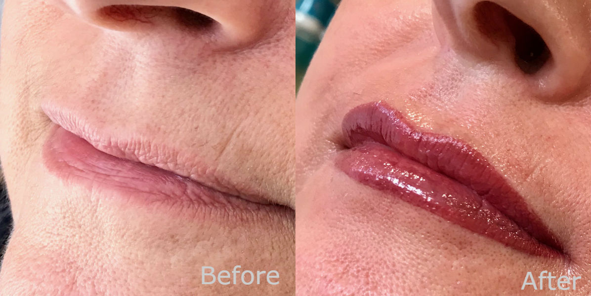 nft beauty lip enhancement before and after c