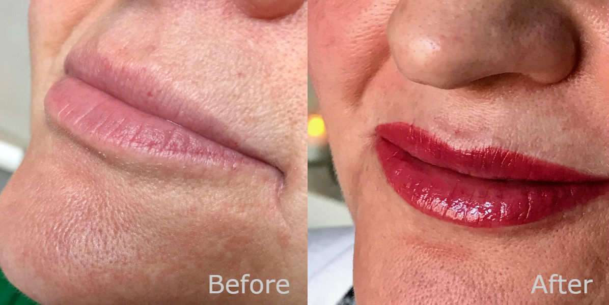 nft beauty lip enhancement before and after d