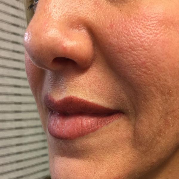 nft beauty lips 600px 4