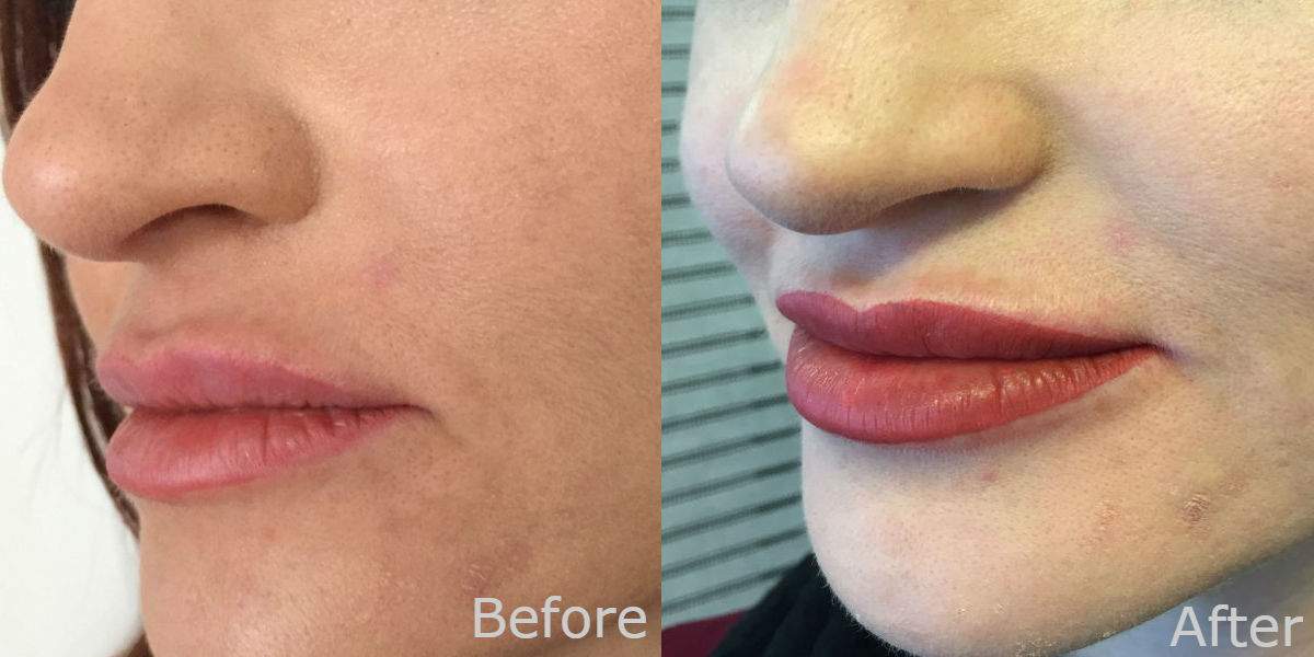 nft beauty lips before and after