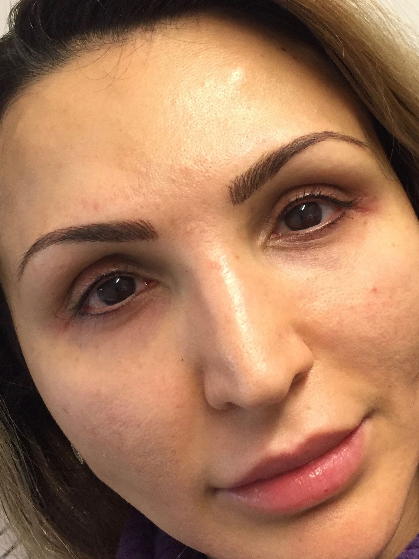 after_brow_andeye_treatment