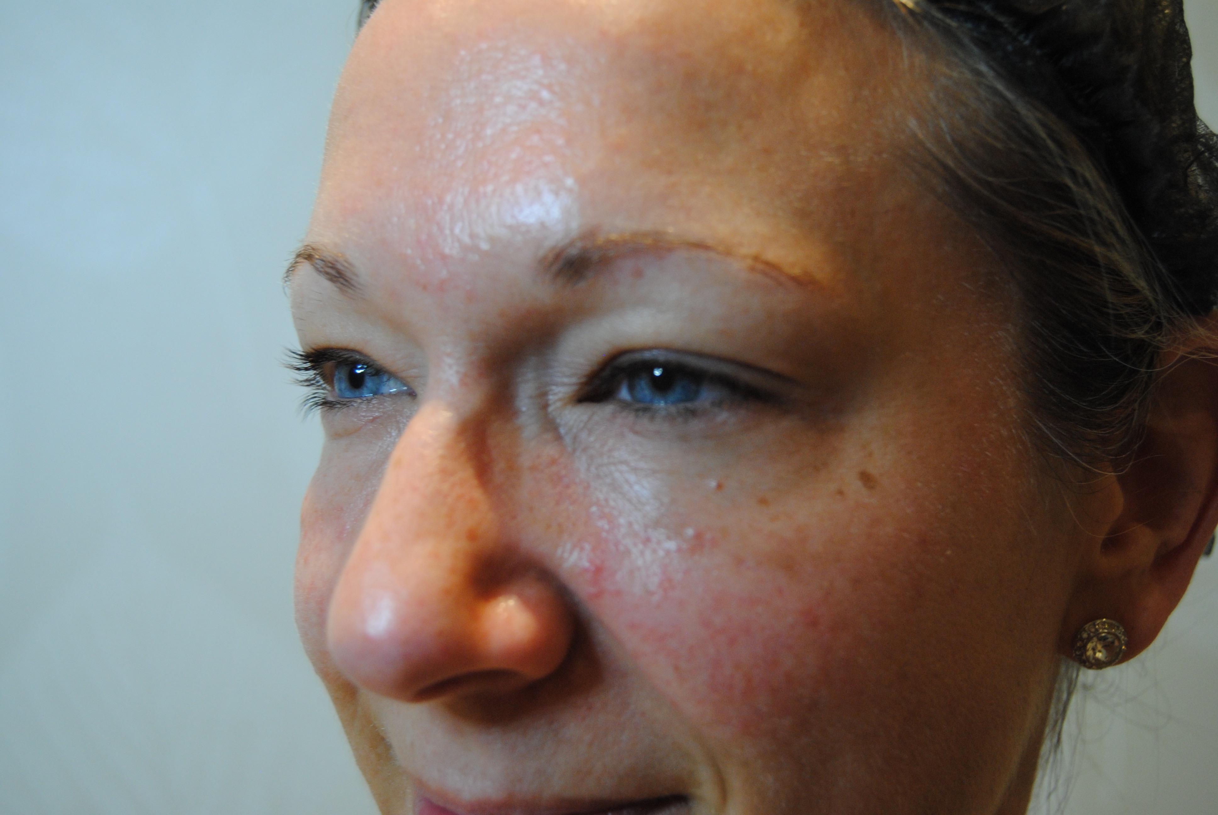 eyebrows_before