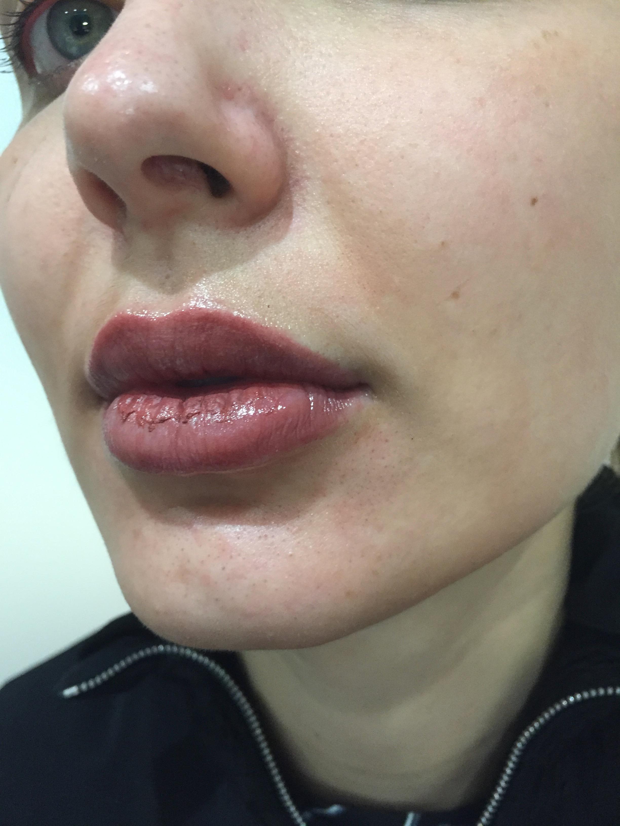 natural_lipblush_after